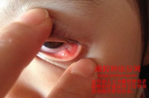手術 霰粒 後 腫 霰粒腫(さんりゅうしゅ)でまぶたにしこりが。赤く腫れることも。│まぶたのお医者さん|眼瞼下垂専門の形成外科医